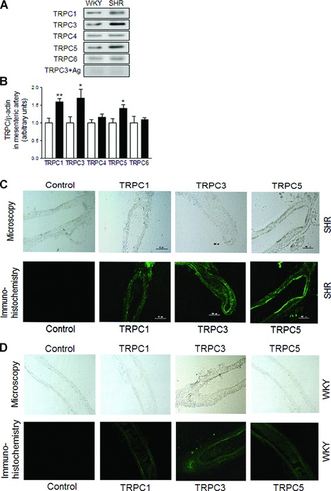 Expression of TRPC1, TRPC3 and TRPC5 channels in mesenteric arterioles from SHR. Representative immunoblottings (A) and summary data (B) of TRPC1, TRPC3, TRPC4, TRPC5,TRPC6 channels and TRPC3 antibody with its respective antigenic peptide the protein expression in mesenteric arterioles from WKY (open bars) and SHR (filled bars). Data are mean ± S.E.M. of n = 4 independent experiments. * P