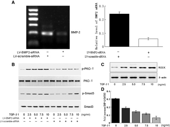 Knocking down BMP-2 enhanced TGF-β1-mediated phosphorylation levels of PKC-δ and Smad3. (A) Quantitative PCR analyses of BMP-2 level in cardiomyocytes treated with special lentivirus-mediated anti-BMP-2 siRNA (LV-BMP2-siRNA) or LV-scramble siRNA, respectively for 24 hr. (B) TGF-β1 (0∼10 ng/ml)-induced phosphorylation levels of PKC-δ at Tyr 155 and Smad3 at Ser 423/425 were determined by Western blotting in cultured cardiomyocytes pre-treated with LV-BMP2-siRNA or LV-scramble-siRNA for 24 hr. (C) Western blotting analyses of the protein level of ROCK induced by TGF-β1 (0∼10 ng/ml) for 24 hr. (D) Quantitative PCR analyses of the mRNA level of BMP-2. Each bottom blot indicated equal loading of proteins normalized by total PKC, Smad3 or β-actin. Data were representative as means ± S.E.M. of n = 4 independent experiments.