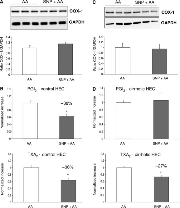 Effects of NO supplementation on COX pathway in control and cirrhotic hepatic endothelial cells (HEC). (A) Representative Western blot and analysis of COX-1 from control HEC treated with sodium nitroprusside (SNP) or its vehicle in the presence of AA. Densitometry quantification in arbitrary units, normalized to glyceraldehyde 3-phosphate dehydrogenase (GAPDH), showed no differences between both groups. ( n  = 5 per group). (B) Prostacylin (PGI 2 ) and Thromboxane (TXA 2 ) production by HEC from control rats stimulated with AA in the presence or absence of the exogenous NO donor SNP ( n  = 6 per group). In control HEC, NO supplementation produced a significant and similar decrease in PGI 2  (−38%) and TXA 2  (−36%). (* P