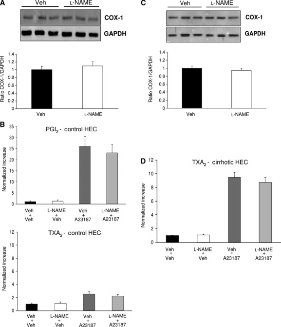 Effects of NO inhibition on COX pathway in control and cirrhotic hepatic endothelial cells (HEC). (A) Representative Western blot and analysis of COX-1 from control HEC treated with vehicle (Veh) or with L-NAME. Densitometry quantification in arbitrary units, normalized to glyceraldehyde 3-phosphate dehydrogenase (GAPDH), showed no differences between both groups ( n  = 7 per group). (B) Prostacyclin (PGI 2 ) and Thromboxane (TXA 2 ) production in control HEC treated with Veh or L-NAME in the presence of the calcium ionophore A23187 or its Veh ( n  = 6 per group). The mean prostanoid levels of HEC treated with Veh+Veh was considered one. NO inhibition did not modify either basal or A23187-induced prostanoid (PGI 2  and TXA 2 ) production. (C) Representative Western blot and analysis of COX-1 from cirrhotic HEC treated with vehicle (Veh) or with L-NAME. Densitometry quantification in arbitrary units, normalized to glyceraldehyde 3-phosphate dehydrogenase (GAPDH), showed no differences between both groups ( n  = 9 per group). (D) Thromboxane (TXA 2 ) production by cirrhotic HEC treated with Veh or L-NAME in the presence of A23187 or its Veh ( n  = 9 per group). The mean prostanoid levels of HEC treated with Veh+Veh was considered one. NO inhibition did not modify either basal or A23187 induced TXA 2  production.