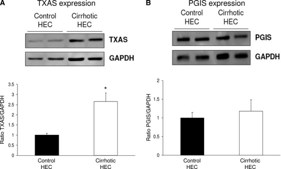 Prostacyclin and Thromboxane synthase protein expression in control and cirrhotic hepatic endothelial cells (HEC). (A) Representative Western blot and analysis of prostacyclin synthase (PGIS) from control and cirrhotic HEC. Densitometry quantification in arbitrary units, normalized to glyceraldehyde 3-phosphate dehydrogenase (GAPDH), showed no differences between both groups ( n  = 4 per group). (B) Representative Western blot and analysis of thromboxane synthase (TXAS) from control and cirrhotic HEC. Densitometry quantification in arbitrary units, normalized to glyceraldehyde 3-phosphate dehydrogenase (GAPDH), showed a significant increase in TXAS in cirrhotic HEC ( n  = 4 per group) (* P