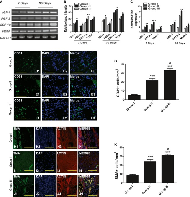 Enhanced paracrine signalling, angiogenesis and cardiac transcription factors in senescent hearts after transplantation of pre-conditioned aged MSCs. (A) RT-PCR shows increased expression of IGF-1 , FGF-2 , VEGF and SDF-1α 7 and 30 days after transplantation in group III hearts. (B) Quantification of gel bands with Image J software. (C) Increased expression of cardiac transcription factors in senescent hearts of group III animals, 7 and 30 days after transplantation as measured by qRT-PCR. (D–F) Blood vessel density analysis by fluorescent immunostaining for the expression of endothelial marker CD31 in all three groups. Nuclei were stained with DAPI. (G) Quantification of CD31 expression in all three groups. (H–J) SMA expression in group I, II and III transplanted hearts. (K) Percentage blood vessel density as measured by SMA expression in all three groups. * P