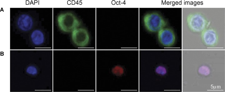 Confocal microscopic images of VSELs and HSCs. Isolated VSELs and HSCs were stained for CD45 (FITC, green fluorescence) and Oct-4 (TRITC, red fluorescence). Nuclei were stained with DAPI (blue fluorescence). ( A ) shows Sca-1 + /Lin − /CD45 + cells (HSCs) that are positive for CD45 and negative for Oct-4. ( B ) shows Sca-1 + /Lin − /CD45 − cell (VSEL), negative for CD45 and positive for Oct-4, a marker of pluripotent cells.