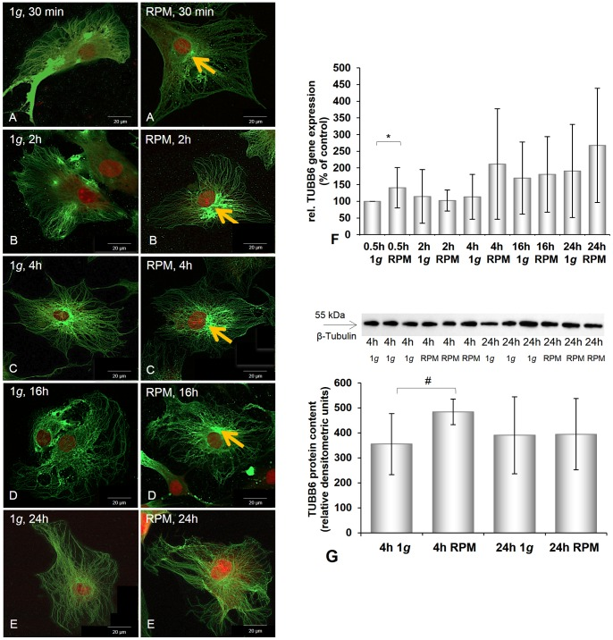 Immunofluorescence, gene expression and Western blot analysis of beta-tubulin of chondrocytes cultured at 1 g or on the RPM. A–E: Beta-tubulin immunofluorescence of chondrocytes cultured at 1 g or on the RPM for different times (30 min ( A ), 2 h ( B ), 4 h ( C ), 16 h ( D ), 24 h ( E )). Control cells showed a similar distribution of β-tubulin, while chondrocytes exposed to the RPM exhibited a perinuclear accumulation of β-tubulin (orange arrows). F: Gene expression of TUBB6 was significantly elevated after 0.5 h, but did not change significantly during the rest of the 24 h of culturing on the RPM. G: Western blot analysis of ß-tubulin protein: The protein content was significantly elevated after 4 h RPM exposure. After 24 h no change was detectable. Data are given as mean ± standard deviation; #P