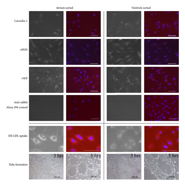 Immunophenotype and functional analysis of cultured FACS sorted cardiac endothelial cells. The upper panel were representative photograph of immunofluorescent staining of cultured FACS sorted cardiac endothelial cells for antiCaveolin-1, anti-eNOS, and anti-vWF followed by anti rabbit <t>IgG</t> Alexa 594. Staining with only secondary anti rabbit IgG <t>Alexa</t> 594 antibody shows minimal background red fluorescence. Left panel shows the monochromic photograph for each antibody. Right panel shows each antibody in red and DAPI in blue. Scale bar = 100 μ m. The lower panel were cultured FACS sorted cardiac endothelial cells up took Ac-LDL-rhodamine (red), also stained with DAPI (blue) and cultured FACS sorted cardiac endothelial cells were plated in Matrigel for the formation of capillary-like structures. Photographs were taken at 3 hours (scale bar = 500 μ m) and 5.5 hours (scale bar = 100 μ m) after incubation.