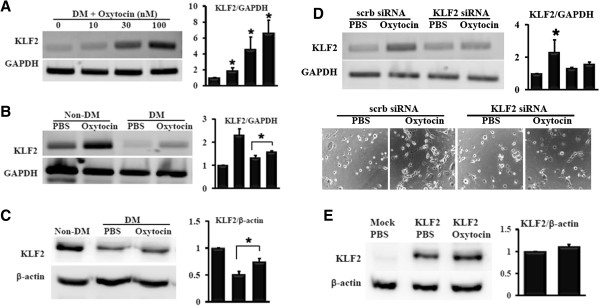 Reduced <t>KLF2</t> level of MSC from DM bone marrow was restored by oxytocin. (A) KLF2 mRNA was assessed in DM-MSC treated with various concentrations oxytocin (n=3). (B) KLF2 mRNA was analyzed in MSC from non-DM or DM bone marrow treated with PBS or oxytocin for 24 hours (n=3). (C) The level of KLF2 protein was reduced in DM-MSC, whereas restored by oxytocin (n=3). (D) Oxytocin-induced KLF2 mRNA was assessed in DM-MSC transfected with scrambled <t>siRNA</t> or KLF2 siRNA (n=3). (E) After <t>transfection</t> with KLF2 plasmid for 24 hours, 293T cells were treated with PBS or oxytocin for 24 hours. KLF2 protein level was examined by Western blot (n=3). Quantification analysis was performed and data in the graph represented the mean ± standard deviation.