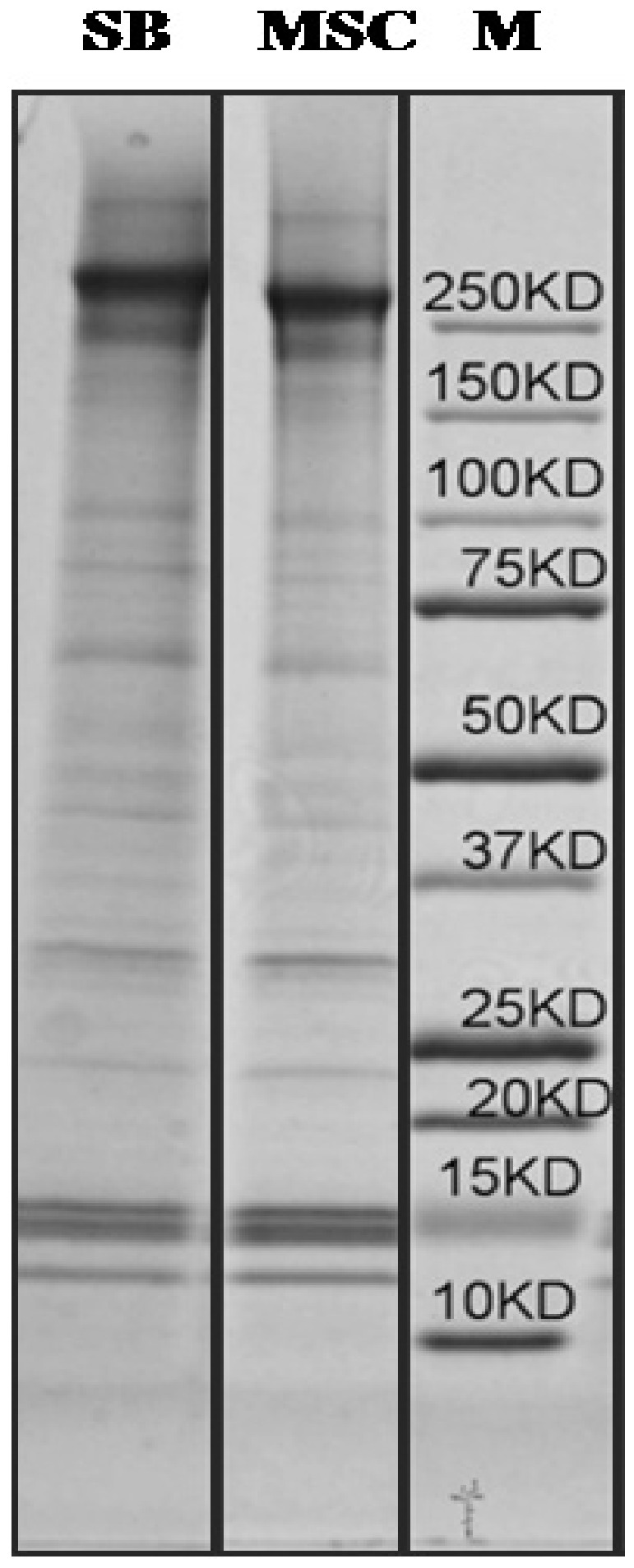 Solubilized MSC and SB623-derived ECM analyzed by SDS-PAGE. SDS/urea-soluble SB623-derived ECM (SB) and corresponding MSC. M: molecular weight markers. SDS/urea samples were precipitated, re-suspended in 2X loading buffer, loaded on a 1.5-mm 4–20% Tris-acetate gel, electrophoresed and stained with <t>Coomassie</t> Blue R-250.