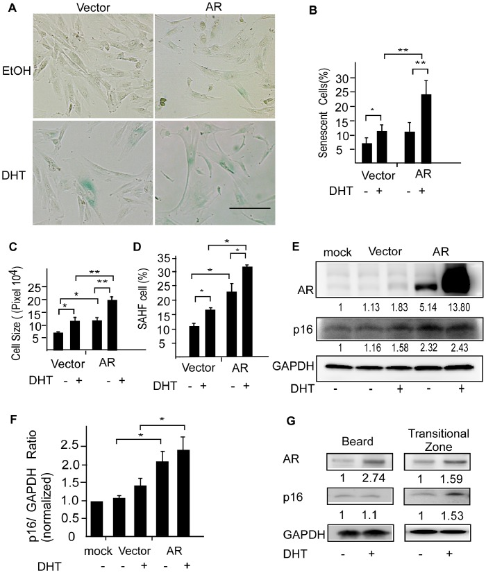 Overexpression of the AR promotes androgen-accelerated premature senescence in DPCs. (A) Non-balding DPCs of frontal scalp were transfected with pcDNA3-hAR, or pcDNA3 empty vector and cultured in the presence of DHT or ethanol (vehicle control) for 3 days. Premature senescence of DPCs was evaluated on day 5. Scale bar = 100 µm. DHT increased SA-β-Gal activity (B), cell size (C), and the number of SAHF-containing DPCs. (D) Overexpression of AR enhanced the statistical significance of DHT effects. Values are means ± SDs from three independent experiments (* P