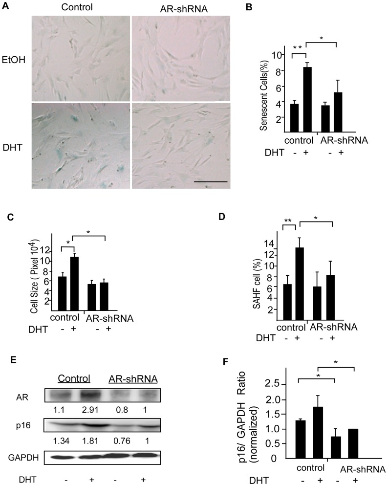 AR knockdown suppresses DHT-mediated senescence in DPCs. (A) DPCs infected with AR-shRNA or scrambled shRNA were cultured in the presence of 0.1 µM of DHT or ethanol for 3 days. Premature senescence of DPCs was evaluated on day 5. The senescence-promoting effect of DHT was inhibited by AR knockdown. Scale bar = 100 µm. (B–D) The percentage of SA-β-Gal activity and Cell size was statistically unchanged in AR-knockdown DPCs after exposure to DHT. DHT induced SAHF formation was suppressed by AR downregulation. Values are means ± SDs from three independent experiments (* P
