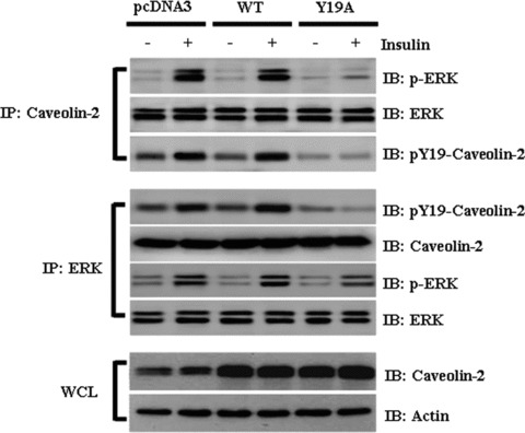 Effect of transient expression of mutant caveolin-2 (Y19A) on the insulin-induced association of caveolin-2 with phospho-ERK. Hirc-B cells were transiently transfected with pcDNA3 alone (pcDNA3), pcDNA3  +  caveolin-2 (WT: wild type), or pcDNA3  +  caveolin-2 (Y19A: phosphorylation-deficient mutant) using the Lipofectamin trans-fection reagent. Thirty-six hours after transfection, the cells were lysed in 1% Triton X-100 lysis buffer B containing 0.5% Nonidet P-40  +  60 mM OG. The WCL were processed for immunoprecipitation with anti-caveolin-2 and anti-ERK antibodies and subjected to immunoblot analysis with anti-phos-pho-ERK, anti-ERK, anti-pY19-cave-olin-2, and anti-caveolin-2 antibodies as indicated.