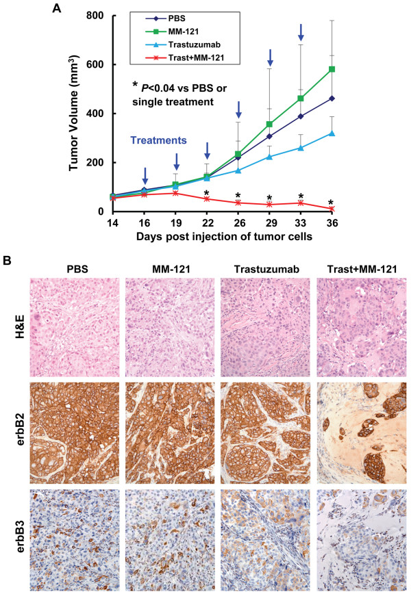 MM-121 in combination with trastuzumab significantly inhibits in vivo growth of tumor xenografts established from BT474-HR20 trastuzumab-resistant breast cancer cells. BT474-HR20 cells were s.c. injected into nude mice to establish tumor xenografts. The tumor-bearing mice (n = 5) received i.p. injections of PBS, trastuzumab, MM-121, or trastuzumab plus MM-121 as described in the Materials and Methods. After 6 treatments, the mice were euthanized at day 36 post injection of tumor cells, and all tumors were excised for histology and IHC analysis. A , The graphs show the tumor growth curves. Bars , SD. The combinations of MM-121 and trastuzumab significantly inhibited tumor growth as compared to control or single Ab treatment. B , Data show the representative tumors with hematoxylin and eosin (H E) staining and IHC analysis of <t>erbB2</t> and erbB3. The residual tumor cells obtained from combinatorial treatments retained similar expression levels of erbB2/erbB3 receptors on the cell membrane.