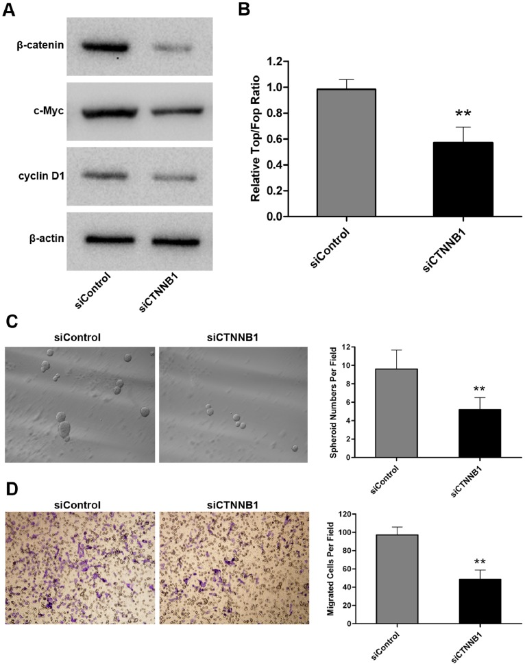 The anti-miR-200a effects are partially attenuated by silencing of CTNNB1 in WB-anti-miR-200a cells. (A) The protein levels of β-catenin, c-myc and cyclin D1 measured by western blot analysis after siCTNNB1 transfection in WB-anti-miR-200a cells. (B) The β-catenin-mediated transcription activity determined by the Top/Fop ratio after siCTNNB1 transfection in WB-anti-miR-200a cells. Data are represented as the mean ± SD; n = 3; **, p