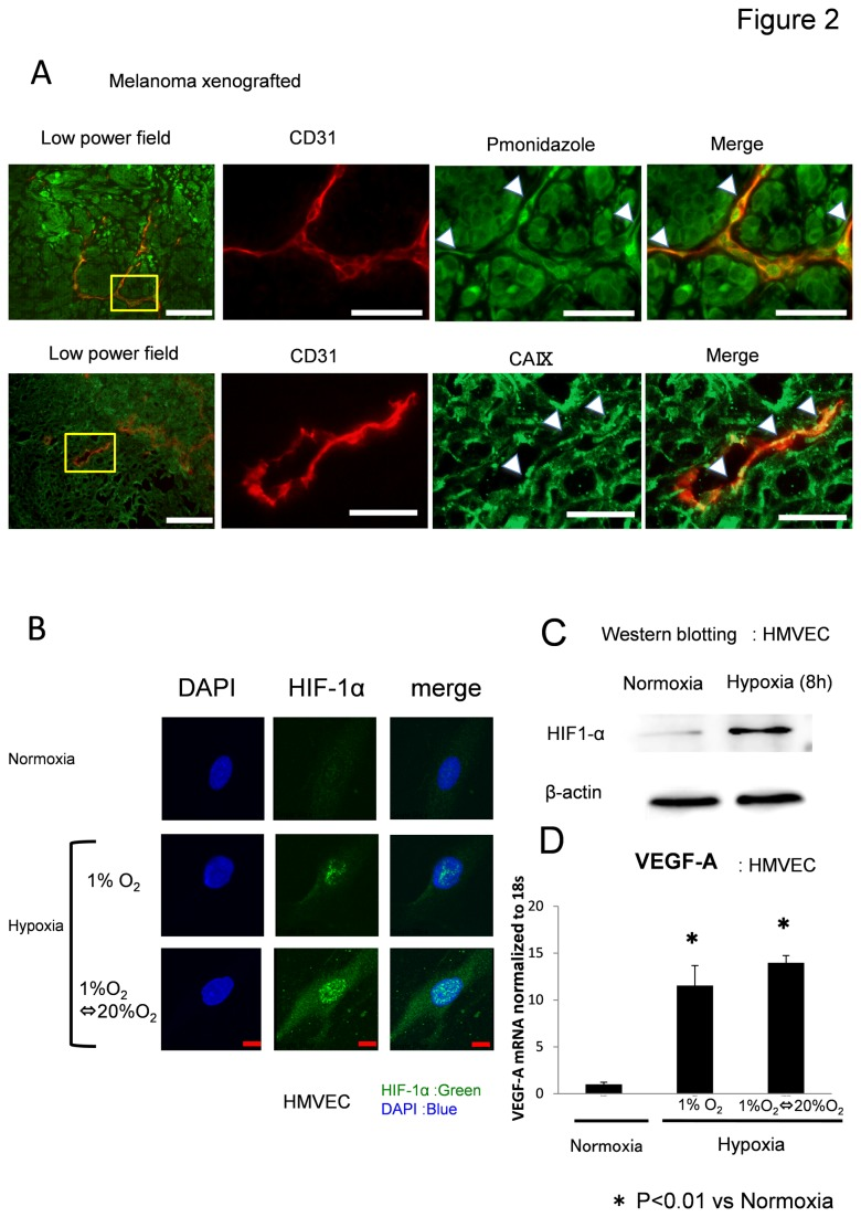 Hypoxia induces HIF-1α and VEGF-A expression in ECs. (A) The hypoxic area in human tumor xenografts in nude mice was analyzed using the hypoxia marker pimonidazole and CA IX. Tumor tissues were double-stained with anti-CD31 (red) and anti-pimonidazole antibodies or anti-CA IX (green) to visualize hypoxic areas. Pimonidazole staining revealed that tumor vessels were exposed to hypoxia to some extent. Scale bar, 100 μm. (B) HMVECs were cultured and treated for 8 h under normoxia or hypoxia. HIF-1α protein was upregulated 8 h after hypoxia, as revealed by western blotting. Densitometry analysis revealed that HIF-1α was induced by hypoxia. (C) HMVECs were cultured and treated for 8 h under normoxia or hypoxia. HIF-1α protein was upregulated 8 h after hypoxia, as revealed by western blotting. Densitometry analysis revealed that HIF-1α was induced by hypoxia. The experiment was repeated three times. Representative data is shown. (D) mRNA levels of VEGF-A were significantly increased by hypoxia in HMVECs. Experiments were performed in triplicate. *p