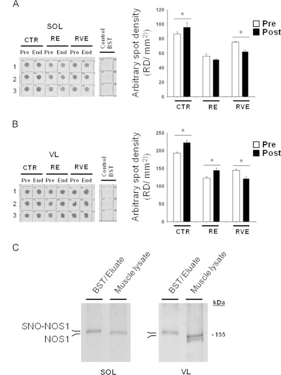 SNO-protein assay in human skeletal muscle biopsies. A. Dot blots analysis (left panel) biotin-labeled proteins (reflecting SNO-proteins) in soleus (SOL) of End vs. Pre bed rest subjects (1,2,3: triplicate), Control BST was obtained by omitting biotin-HPDP during the protocol; right panel, dot blot densitometry analysis. B. (left panel) Dot blot analysis of biotin-labeled proteins in vastus lateralis (VL) of End vs. Pre bed rest subjects (1,2,3: triplicate), Control BST was obtained by omitting biotin-HPDP during the protocol; right panel, dot blot densitometry analysis. A significant increase of biotin incorporation is observed in CTR group ( n =9) in both muscles (SOL, Pre 86.51±2.9, End 95.64±6.5; VL Pre 192.94±3.07, End 222.59±6.6). In the RE group ( n =7) a significant increase was in VL only (Pre 123.07±4.7, End 145.6±5.56) but not in SOL after bed rest. RVE ( n =7) only significantly decreased SNO-protein levels in both SOL (Pre 75.3±0.75, End 62.25±1.7) and VL (Pre 144.52±3.8, End 122.32±4.1). C. NOS1 WB analysis of BST streptavidin column eluate vs. normal muscle lysates (Muscle lysate). In both SOL and VL, NOS1 immunoreactive bands with higher relative mobility are detectable (BST/Eluate) vs. a predicted NOS1 immunoreactive band obtained from total muscle lysates used as positive control.