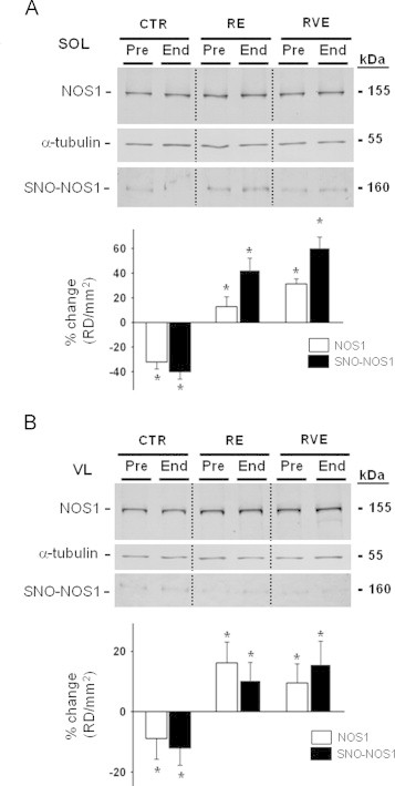 BST-related SNO-NOS1 protein assay of human SOL and VL muscle biopsies before and after bed rest. A. Upper panel , NOS1 WB analysis of SOL lysates normalized to alpha tubulin. A. Middle panel, NOS1 WB analysis of BST-streptavidin column eluate in SOL lysates. NOS1 protein immunoreactive bands reflecting biotin-labeled NOS1 proteins were present in all eluate samples showing the presence of S-nitrosylated NOS1 proteins in human SOL. A. Lower panel , graph representing percent changes of NOS1 (white columns, CTR ( n =9), −32%, p ≤0.01; RE ( n =7), 12.7%, p ≤0.05; RVE ( n =7), 31.2%, p ≤0.01) and of SNO-NOS1 (black columns, CTR ( n =9), −40%, p ≤0.01; RE ( n =7), 42.5%, p ≤0.01; RVE ( n =7), 60.6%, p ≤0.01) proteins in SOL of End vs. Pre bed rest biopsies (Pre values are set up as zero baselines). B. Upper panel , NOS1 WB analysis of VL lysates normalized to alpha tubulin. B. Middle panel, NOS1 WB analysis of BST-streptavidin column eluate in VL lysates. NOS1 protein immunoreactive bands reflecting biotin-labeled NOS1 proteins were present in all eluate samples showing the presence of S-nitrosylated NOS1 proteins in human VL. B. Lower panel , graph representing percent changes of NOS1 (white columns, CTR ( n =9), −9.84%, p ≤0.05; RE ( n =7), 16.2%, p ≤0.01; RVE ( n =7), 9.5%, p ≤0.05) and of SNO-NOS1 (black columns, CTR ( n =9), −12%, p ≤0.05; RE ( n =7), 10.45%, p ≤0.05; RVE ( n =7), 15.65%, p ≤0.01) proteins in VL lysates of End vs. Pre bed rest samples (Pre values are set up as zero baselines).
