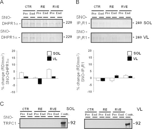 BST detection of sarcolemmal and sarcoplasmatic reticulum functional channel proteins in human skeletal SOL and VL from bed rest subjects. A. Upper and lower panel , DHPR1 α immunoblot of BST streptavidin column eluate of SOL and VL. A moderate presence of DHPR1 α proteins was present in all groups (CTR n =9; RE n =7; RVE n =7). B. Upper and lower panel , IP 3 R1 immunoblot of BST streptavidin column eluate of SOL and VL. A moderate presence of IP 3 R1 proteins was present in all groups (Pre). No changes were present in both samples after bed rest (End) (CTR n =9; RE n =7; RVE n =7). C. Left and right panel , TRPC1 immunoblot of BST streptavidin column eluate of SOL and VL (CTR n =9; RE n =7; RVE n =7); (Contr.=positive control of total proteins muscle lysates). No SNO-TRPC1 protein signals were detectable in either group before and after bed rest.
