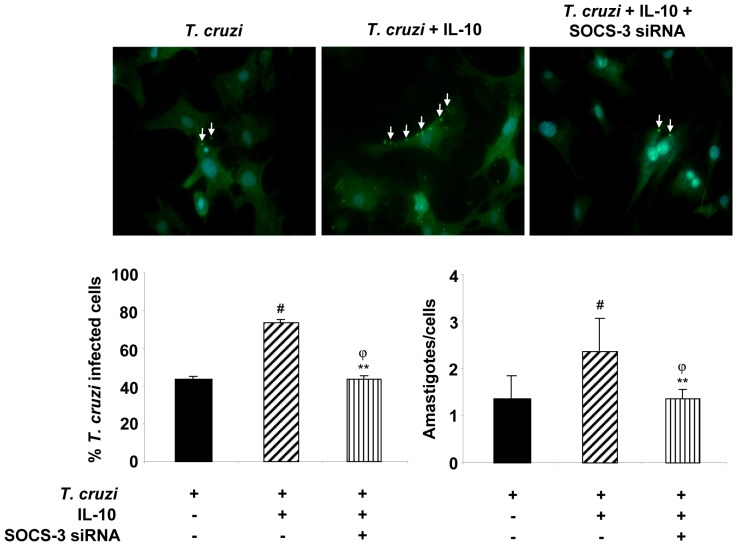 SOCS-3 silencing reverts IL-10-induced cardiomyocytes parasitism. Cells grown on glass coverslips were infected, infected and treated with 20/ml of IL-10 or silenced by siRNA for 72 h and then pre-treated with IL-10 and infected for 48 h. Infected cells were incubated with rabbit polyclonal serum against to T. cruzi followed by FITC-labeled goat anti-rabbit IgG. Afterwards, cells were counterstained with DAPI (300 nM). The percentage of infected cells (left bar graph) and the number of amastigotes/cell (right bar graph) are shown. Results represent the Mean ± SD of two experiments. Microphotographs are representative of 30 fields taken at 400X magnification. White arrows show FITC-anti- T.cruzi- labelled intracellular amastigotes.