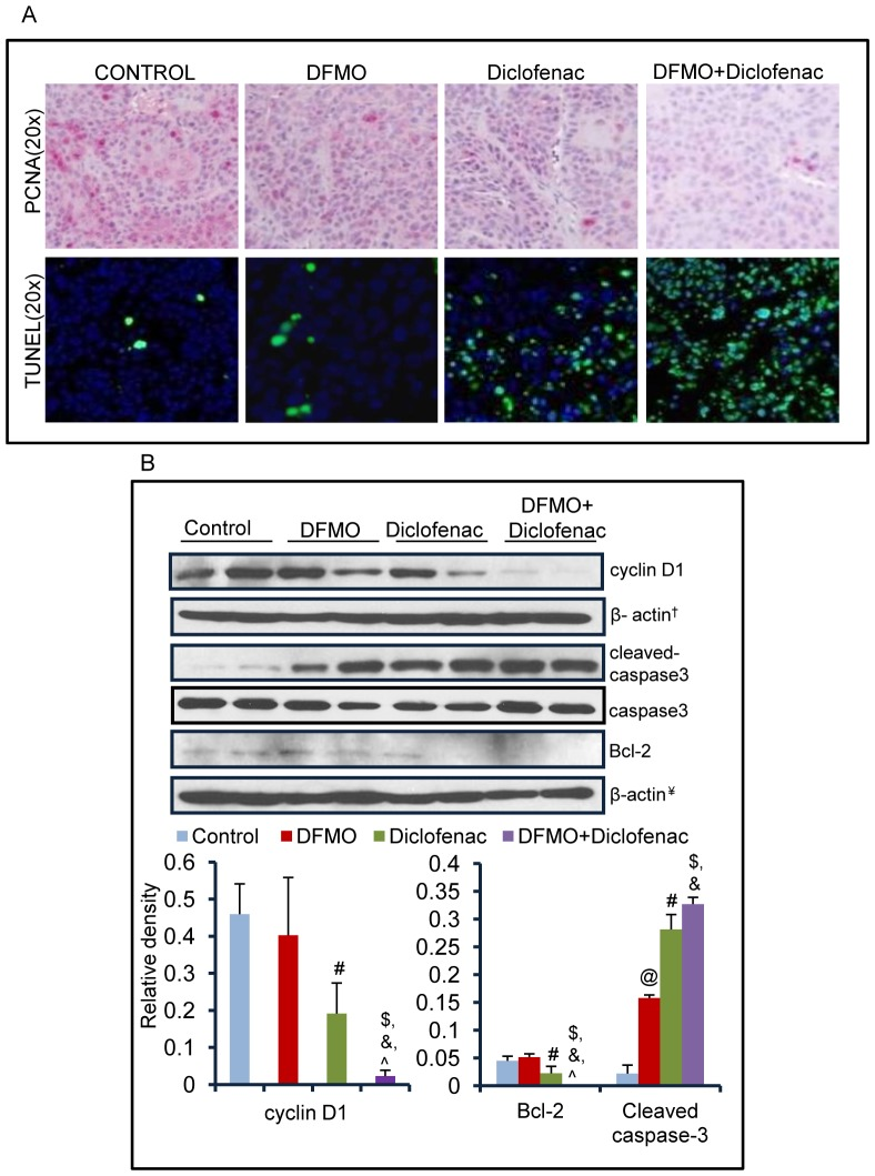 DFMO+diclofenac decreases proliferation and induce cell death by apoptosis in human epidermoid xenografts. (A) Tissue sections from A431 xenograft tumors were stained for PCNA or TUNEL. DFMO+diclofenac treatment on expression levels of PCNA and TUNEL-positive apoptotic cells as compared to vehicle and their individual treatments. (B) Western blot analysis was done by randomly selecting two individual samples from each group. The effect of ODC and COX-2 inhibitors treated as single agents and in combination on the expression of cyclin D1 and apoptotic marker proteins. The bar diagram represents relative expression level of these proteins the error bars demonstrate the standard error between two individual samples selected from each group. (cyclin D1: @ = NS, # = 0.04, $ = 0.001, = 0.01, ? = 0.05; Bcl-2: @ = NS, # = 0.04, $ = 0.01, = 0.05, ? = 0.05; cleaved caspase-3: @ = 0.005, # = 0.007, $ = 0.002, = 0.004 ? = NS). @ - significant when DFMO alone compared to vehicle-treated control, #- significant when diclofenac alone compared to vehicle-treated control, $ - significant when DFMO+diclofenac compared to vehicle, and ?-significant when DFMO+diclofenac compared to single treatment of DFMO and diclofenac respectively. Identical β-actin loading controls are denoted by symbol '†' '¥' '‡' and '€' in various figures.