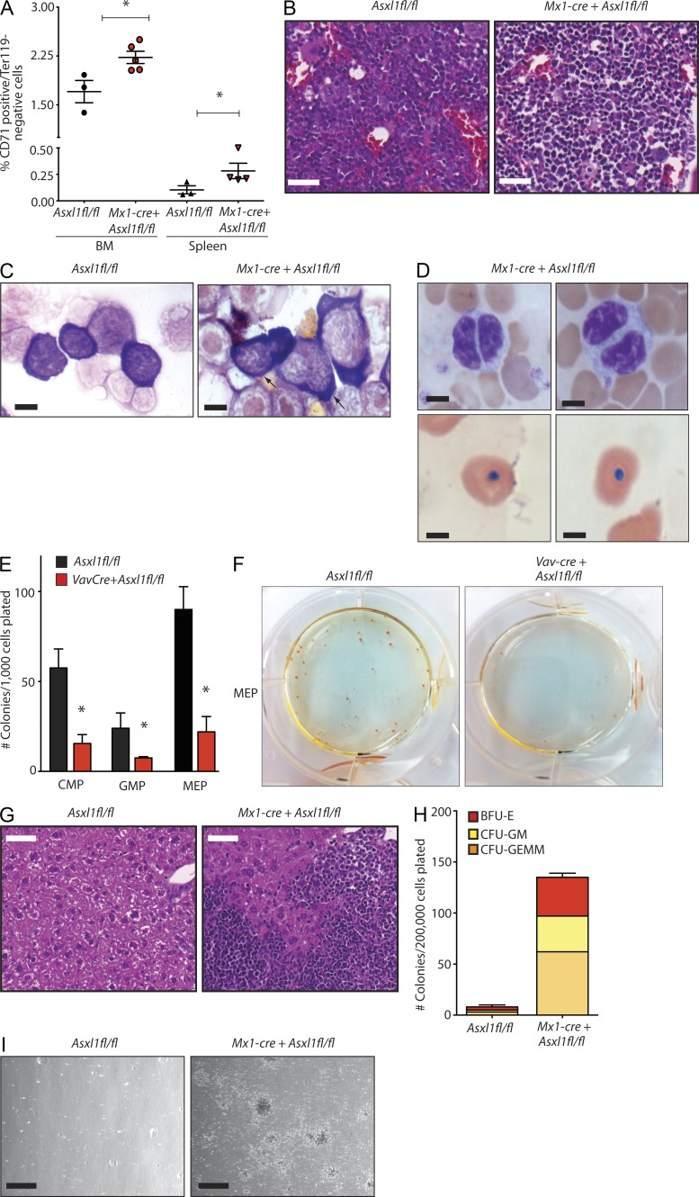 Deletion of Asxl1 results in myeloid and erythroid dysplasia and impaired progenitor differentiation consistent with myelodysplasia. (A) Relative frequency of CD71 + /Ter119 − erythroid precursors in BM and spleen of 6.5-mo-old Mx1-cre Asxl1 fl/fl (KO) and Cre − Asxl1 fl/fl control mice (expressed as percentage of live cells; n = 3–5 mice per genotype in each tissue type examined by FACS analysis). (B) Histological (H E) analysis of Mx1-cre Asxl1 fl/fl and Cre − Asxl1 fl/fl control BM from 6-mo-old littermate mice. (C) BM cytospins (Wright-Giemsa) from the same mice (arrows indicate erythroid precursors with prominent irregular nuclear contours). (D) Representative morphology of peripheral blood myeloid cells (top) and nucleated RBCs (bottom) in KO mice (Wright-Giemsa stain). (E) Number of colonies formed 7 d after plating of 1,000 CMP, GMP, or MEP cells into methylcellulose from 6-wk-old Vav-cre Asxl1 fl/fl and littermate control (Cre − Asxl1 1fl/fl control) mice. The experiment was performed in biological duplicate. (F) Photograph of methylcellulose colony plate 7 d after plating of MEP cells from 6-wk-old KO and control mice. (G) Histological analysis by H E staining of liver from 72-wk-old Mx1-cre Asxl1 fl/fl mice and littermates. (H) Number of colonies formed 7 d after plating of 200,000 nucleated cells harvested from the liver of 72-wk-old Mx1-cre Asxl1 fl/fl or littermate control mice in methylcellulose containing rmIL-3, rm-SCF, rh-IL6, rh-EPO (liver cells from n = 5 mice per genotype plated in methylcellulose). (I) Photomicrograph of colonies grown from cells taken from the liver and plated in methylcellulose is shown on right. Bars: (B) 50 µm; (C) 10 µm; (D) 5 µm; (G) 100 µm; (I) 200 µm. Error bars represent ±SD; *, P