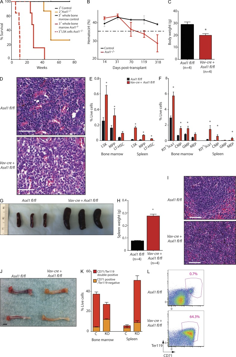 Serial noncompetitive transplantation of Asxl1 -null cells results in lethal myelodysplastic disorder. (A) Kaplan-Meier survival curve of recipient mice transplanted with 70-wk-old Vav-cre Asxl1 fl/fl or Cre − Asxl1 fl/fl littermate control whole BM after secondary and tertiary transplantation. Also shown is the survival of mice transplanted with purified LSK cells in tertiary transplantation (tertiary transplant of Asxl1 fl/fl control LSK cells is not shown; no recipient mice from this group died by 40 wk [ n = 5]). Cre − Asxl1 fl/fl littermate controls were similarly transplanted in parallel in each experiment. Four to six recipient mice were transplanted in each experiment. (B) Hematocrit over time of secondary recipient mice transplanted with Asxl1 -null or littermate control whole BM in a noncompetitive manner. The dashed line represents the lower limit of normal hematocrit for C57BL/6 mice ( n = 4–6 mice per genotype at each time point). (C) Body weight of secondarily transplanted mice at 50 wk after transplantation ( n = 4 mice per genotype). (D) BM histopathology of secondary recipient mice transplanted with Asxl1 -null or littermate control whole BM at 50 wk. (E) Relative frequency of LSK cells, MPP cells (LSK + , CD150 − , CD48 + ), and LT-HSCs (LSK + CD150 + CD48 − ) in BM and spleen at 50 wk after noncompetitive secondary transplantation. Frequencies are expressed as frequency of live cells ( n = 4 mice per genotype examined for FACS experiments). (F) Relative frequency of MP (lineage − c-Kit + Sca-1 − ), CMP (lineage − , c-Kit + , Sca-1 − , FcγR − , CD34 + ), GMP (lineage − c-Kit + Sca-1 − , FcγR + CD34 + ), and MEP (lineage − c-Kit + Sca-1 − FcγR − CD34 − ) cells at 50 wk after noncompetitive secondary transplantation. Frequencies are expressed as a frequency of live cells. (G) Photographs of spleens from secondary recipient mice transplanted with Vav-cre Asxl1 fl/fl or Cre − Asxl1 fl/fl littermate control whole BM 50 wk after lethal irradiation. (H) Weight of the same spleens as shown in G ( n = 4 mice per genotype). (I) Histopathology of spleens from secondary recipient mice transplanted with Asxl1 -null or WT littermate control whole BM 50 wk after noncompetitive secondary transplantation revealing loss of normal splenic architecture. (J) Photographs of representative femur (top) and tibia (bottom) from secondary recipient mice transplanted with Vav-cre Asxl1 fl/fl or Cre − Asxl1 fl/fl littermate control whole BM 50 wk after noncompetitive secondary transplantation. Bars: (D and I) 50 µm; (J) 2 mm. (K) Relative quantification of CD71 + /Ter119 − and CD71/Ter119 double-positive cells from BM and spleen of secondary recipient mice transplanted with Vav-cre Asxl1 fl/fl or Cre − Asxl1 fl/fl littermate control whole BM 50 wk after noncompetitive secondary transplantation. Frequencies are expressed as a percentage of live cells ( n = 4 mice per genotype examined by FACS analysis). (L) Representative FACS plots of data shown in K from splenocytes. Staining is as shown, and live cells were gated in parent gate. Error bars represent ±SD; *, P