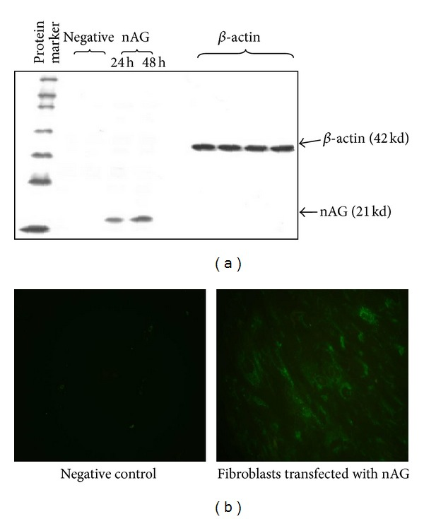 Western blot assay (a) and immunofluorescence (b) experiments showing nAG protein expression in primary human fibroblasts. (a) Western blot was performed after 24 h and 48 h of transfection. The cells were lysed by using RIPA cocktail; proteins were separated on 12% SDS polyacrylamide gel. The primary antibody V5 probe and HRP-conjugated secondary antibody were used for nAG protein detection in the following lanes: nontransfected fibroblasts (negative control 1), fibroblasts with nAG plasmid without lipofection (negative control 2), nAG transfected fibroblasts tested after 24 h and nAG transfected fibroblasts tested after 48 h. (b) Immunofluorescence assay was performed after 48 h of transfection and cells were fixed and <t>permeabilized</t> by 2% <t>PFA/0.1%</t> Triton x-100. V5 probe was used as primary antibody and green fluorescence was detected by using FITC-conjugated secondary antibody. Compare nAG protein expression in nontransfected fibroblasts (negative control) to nAG expression in transfected fibroblasts (magnification 40x).