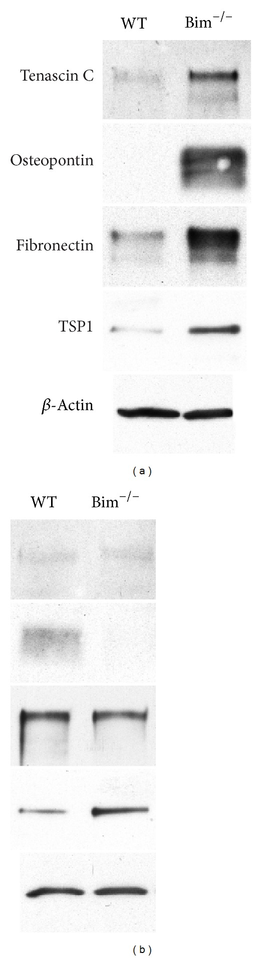 Altered expression of ECM proteins in Bim −/− retinal cells. Wild-type and Bim −/− retinal endothelial cells (panel (a)) and pericytes (panel (b)) were grown for 2 days in serum-free medium. The medium was harvested, clarified, and Western-blotted for extracellular matrix proteins as noted. The expression of β -actin from total cell lysates was used as a loading control. These experiments were repeated twice with similar results.