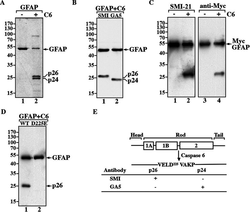 GFAP is specifically cleaved at Asp 225 by caspase 6 in vitro ( A ) Purified recombinant human GFAP was either untreated (lane 1) or treated with 2.5 U of active caspase 6 (lane 2) for 1 h at 37°C. The reaction products were separated by SDS/PAGE, followed by Coomassie Blue staining. ( B ) GFAP cleaved by active caspase 6 generated two prominent proteolytic fragments, p26 and p24 (A, lane 2), which were recognized by the anti-GFAP antibodies SMI-21 (lane 1) and GA-5 (lane 2), antibodies, respectively. Both antibodies also recognized intact GFAP (lanes 1 and 2). ( C ) Caspase cleavage of Myc-GFAP generated a proteolytic fragment that was recognized by both the anti-GFAP SMI-21 (lane 2) and anti-Myc (lane 4) antibodies. ( D ) The D225E mutant GFAP was resistant to caspase 6 cleavage (lane 2), whereas caspase cleavage of wild-type GFAP generated appropriately sized proteolytic products (lane 1). The molecular mass markers (in kDa) are indicated at the left of each panel. ( E ) A schematic view of the structural organization and caspase-mediated digestion of GFAP. GFAP comprises a central α-helical rod domain, flanked by non-helical head and tail domains (denoted by black bars). Within this rod domain, subhelical segments (denoted by boxes) are connected by short linker sequences (denoted by black bars). p26 and p24 represent the major caspase-cleaved GFAP fragments that migrate on SDS/PAGE with apparent molecular masses of 26 and 24 kDa, respectively. The single-letter amino acid codes for the caspase cleavage site are also indicated. The ability of the anti-GFAP antibodies to detect specific GFAP fragments is summarized. (+), immunopositive; (−), immunonegative.