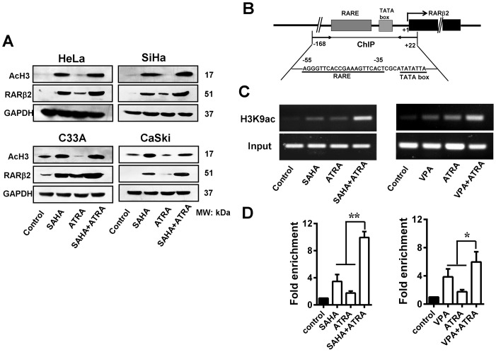 Histone modification at the RARβ2-promoter region induced by HDAC inhibitor and ATRA treatment. (A) SAHA (10 µmol/L) treatment for 48 h, either alone or in combination with ATRA (1 µmol/L), strongly induced the hyperacetylation of <t>histone</t> H3 and restored RARβ2 expression in HeLa, SiHa, CaSki, and C33A cells. (B) Schematic of the RARβ2-promoter region. The exons of RARβ2 are represented by black boxes. The arrow indicates the transcription-initiation site. The PCR region (−168 to +22) for the ChIP assay included the core region of the RARE, the TATA box, and 22 bp of exon 1. (C) Representative ChIP-PCR data. PCR products were visualized via a 1% agarose gel stained with ethidium bromide. (D) DNA samples from the anti-H3K9ac IP as well as the input material and the mock immunoprecipitation samples were quantified by real-time PCR. Treatment with either 10 µmol/L SAHA or 3 mmol/L VPA led to a significant increase in RARβ2-RARE enrichment. The greatest increase in RARβ2-RARE enrichment was observed with the combination treatment. * P