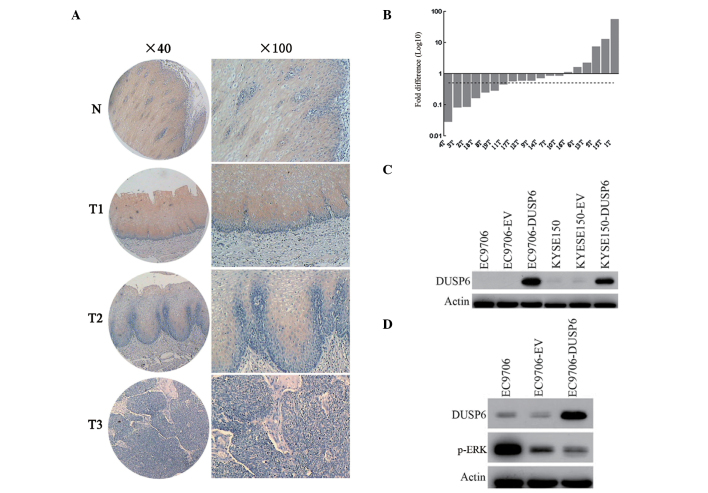 DUSP6 expression in esophageal cancer. (A) Expression of DUSP6 in normal esophageal epithelia and primary ESCC tumors were examined by immunohistochemistry. Normal esophageal epithelia are shown in panel N and the primary esophageal cancers are shown in panels T1, T2, and T3 (magnification: Left, ×40; right, ×100). (B) Expression of DUSP6 in paired normal and tumor tissues from the same patients by qPCR. In total, 36.8% (7/19) of the biopsies displayed at least two-fold downregulation of DUSP6 compared with their corresponding normal counterparts. The dotted line is shown to indicate the two-fold threshold of downregulation. (C) Western blot analysis was used to determine the DUSP6 expression in EC9706, empty vector-transfected EC9706, pCMV-DUSP6 (DUSP6)-transfected EC9706, KYSE150, empty vector-transfected KYSE150 and pCMV-DUSP6-transfected KYSE150 cells. (D) Western blot analysis was utilized to examine the DUSP6 and p-ERK expression in EC9706, empty vector-transfected EC9706 and pCMV-DUSP6 (DUSP6)-transfected EC9706 cells. DUSP6, dual-specificity phosphatase 6; ESCC, esophageal squamous cell carcinoma; p-ERK, phosphorylated extracellular signal-regulated kinase.