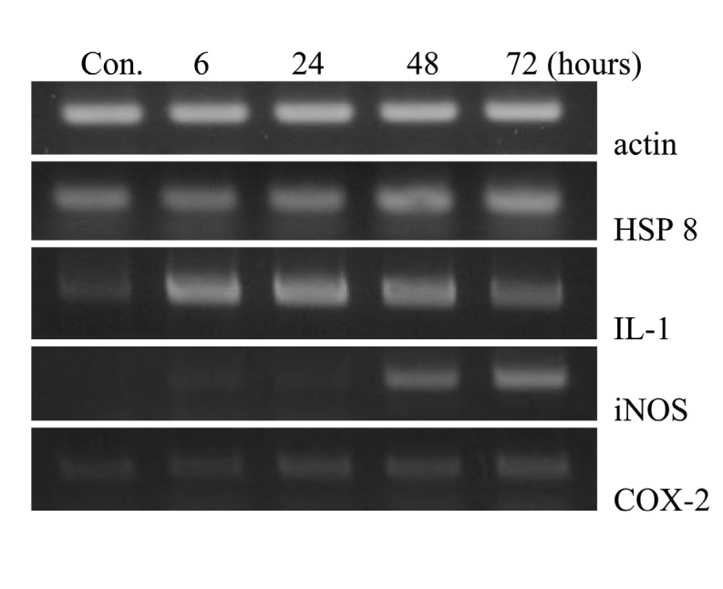 Effects of C60s on the expression of cytokine genes by a single peritoneal injection. Mice were intraperitoneally injected with fullerene 2mg/kg bw and were sacrificed at 6 24 48 and 72 hrs after injection (n = 6) . The peritoneal fluid was harvested and pooled by 2 mice to make 3 test samples (total 6 mice per group at each time point) at the designated time after injection.After isolation of peritoneal macrophage RNA was extracted from the cells and amplified by RT-PCR using the respective primers described in Table 1 . The results were confirmed by several separate experiments and representative images are shown.