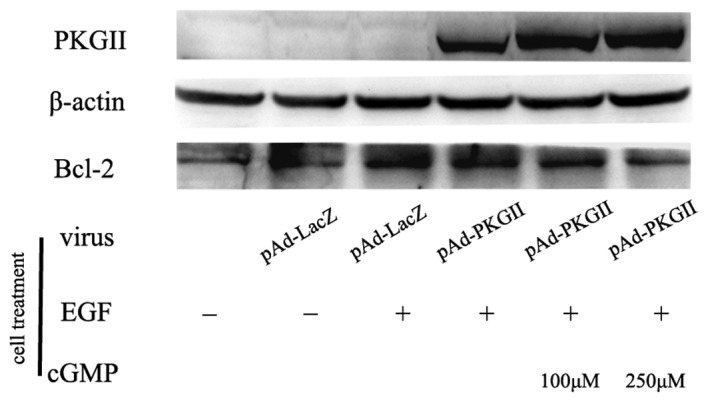 PKG II inhibits EGF-induced expression of Bcl-2. The AGS cells were treated as in Fig. 5 and harvested and lysed as described in Materials and methods. The cell lysate was subjected to western blotting with an anti Bcl-2 antibody. The results revealed that in the EGF-treated cells, the expression of Bcl-2 increased, and a higher expression and activity of PKG II prevented the EGF-induced increase of Bcl-2 expression. PKG II, cGMP-dependent protein kinase Type II; EGF, epidermal growth factor.