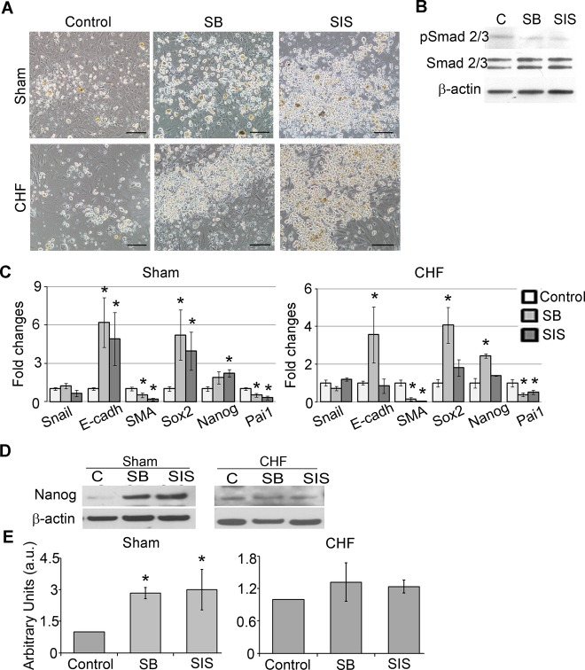 TGF‐β inhibition suppressed EMT and upregulated pluripotency gene expression in c‐Kit+ cells. TGF‐β signaling was inhibited by suppression of TGF‐β receptor type 1 (SB) or by suppression of Smad2/3 phosphorylation (SIS) for 7 days. A, SB and SIS treatments increased amounts of round phase‐bright cells compared with control. Scale bar=100 μm. B, Western blot analysis of c‐Kit+ cells treated with SB and SIS showed reductions of pSmad2/3 levels. C, qRT‐PCR analysis of EMT‐ and pluripotency‐related gene expression in SB‐ and SIS‐treated c‐Kit+ cells from sham and CHF explants. Fold changes were calculated as a ratio of the expression in the SB‐ or SIS‐treated group to the expression in the control group. n=5 per condition. *Fold changes > 2. D, Western blot analysis of Nanog in SB‐ and SIS‐treated c‐Kit+ cells. β‐Actin was used as a loading control. Representative blots are shown. E, Densitometry analysis of Nanog. n=3 per condition. * P