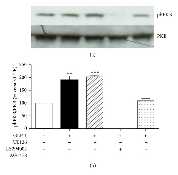 Pharmacological inhibition of PI3K abrogates GLP-1-induced activation of PKB. ARPE-19 cells were cultured in serum-free medium for 24 hours and stimulated for 10 minutes with 10 nmol/L GLP-1 in the presence or absence of MEK1/2 inhibitor U0126 (10 μ mol/l) or PI3K inhibitor LY294002 (50 μ mol/l), or EGFR inhibitor AG 1478 (0.25 μ mol/l). (a) Representative western blot analysis of PKB phosphorylation (phPKB) and total protein is shown. (b) Quantification of densitometries of western blot bands. Data were expressed as mean ± SE of fold induction relative to total PKB ( n = 3). ** P