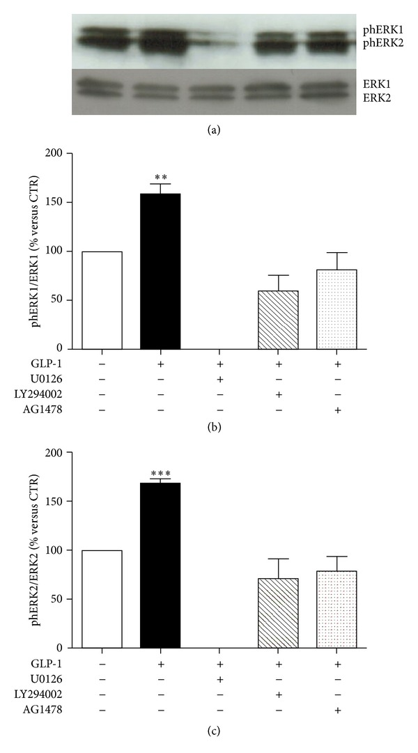 Pharmacological inhibition of PI3K blocked GLP-1-induced activation of ERK1/2. ARPE-19 cells were cultured in serum-free medium for 24 hours and stimulated for 10 minutes with 10 nmol/L GLP-1 in the presence or absence of MEK1/2 inhibitor U0126 (10 μ mol/l) or PI3K inhibitor LY294002 (50 μ mol/l), or EGFR inhibitor AG 1478 (0.25 μ mol/l). (a) Representative western blot analysis of ERK 1/2 phosphorylation (phERK1/2) and total protein is shown. (b) Quantification of densitometries of western blot bands of phERK1. Data were expressed as mean ± SE of fold induction relative to total ERK1 ( n = 3). ** P