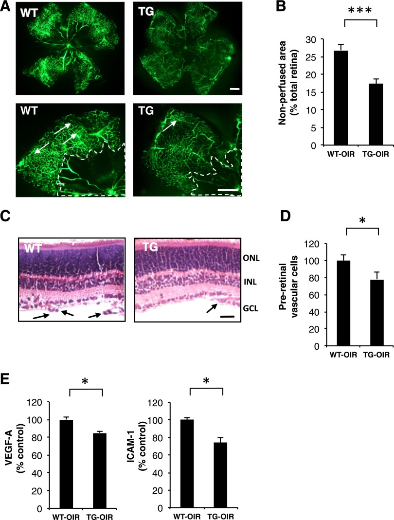 Alleviated retinal neovascularization and retinal neuroinflammation in the kallistatin-TG mice with OIR. Kallistatin-TG and WT mice were exposed to 75% oxygen from P7 to P12. Angiography was performed using FITC-dextran at P18 and with the retina flat mounted. A : Representative retinal angiographs from the eyes of WT and kallistatin-TG mice with OIR. The white arrows indicate neovascular tufts in the retina. The white dotted line outlines a vascular area in the central retinal. Scale bar: 100 μm. B : Quantification of nonperfused area. Retinal nonperfused area was semiquantified using ImageJ software and expressed as % of the whole area of the retina. n = 6–9. At P18, the eyes of kallistatin-TG and WT mice with OIR were fixed, sectioned, and stained with H-E. C : Representative retinal sections from WT and kallistatin-TG mice with OIR. Arrows indicate preretinal vascular cells. Scale bar: 50 μm. D : Preretinal vascular cells were quantified and compared between WT and kallistatin-TG mice with OIR. n = 8. E : Retinal levels of VEGF and ICAM-1 were measured with ELISA and expressed as percentages of the respective WT control. n = 8. All values are mean ± SD. * P