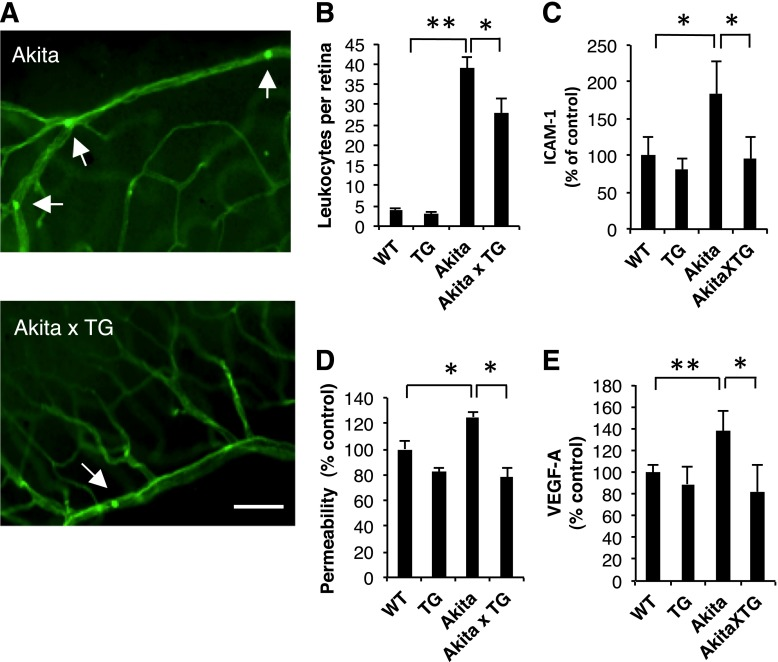 Decreased retinal neuroinflammation and retinal vascular leakage in diabetic kallistatin-TG mice. Akita mice and Akita×kallistatin-TG mice at 5 months of age were used for leukostasis assay. A : Adherent leukocytes (arrow) were stained with FITC-conjugated concanavalin-A in the retinal vasculature. The retinal vasculature and leukocytes were visualized in retinal flat mounts under a fluorescence microscope. Scale bar: 50 μm. B : Adherent leukocytes in the retinal vasculature were counted in age-matched WT, kallistatin-TG, Akita, and Akita×kallistatin-TG mice. n = 7–10. C : Retinal levels of soluble ICAM-1 were measured by ELISA in age-matched WT, kallistatin-TG, Akita, and Akita×kallistatin-TG mice and expressed as percentages of the respective WT control. D : Retinal vascular permeability of WT, kallistatin-TG, Akita, and Akita×kallistatin-TG mice was measured using Evans blue as a tracer, normalized by retinal protein concentrations, and expressed as a percentage of the permeability in WT control. E : Retinal levels of VEGF-A were measured by ELISA in WT, kallistatin-TG, Akita, and Akita×kallistatin-TG mice and expressed as percentages of the respective WT control. All values are mean ± SD. * P