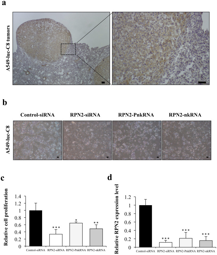 Suppressive effect of novel RNAi agents for RPN2 in A549-luc-C8 cells. (a) Immunohistochemical staining for RPN2 proteins in representative tumors of A549-luc-C8 xenograft lung cancer models. The scale bars indicate 100 μm. (b) Phase-contrast micrographs of A549-luc-C8 cells 96 h after transfection with RPN2 siRNA, RPN2 PnkRNA, RPN2 nkRNA or control siRNA using <t>DharmaFECT</t> 1 reagent. The scale bars indicate 10 μm. (c) Cell proliferation was measured 96 h after transfection with each of the RNAi therapeutic agents. Inhibition of cell growth was observed on A549-luc-C8 cells treated with RPN2 siRNA, PnkRNA, nkRNA, or the control siRNA. Statistical analysis was performed by the Bonferroni multiple-comparison test. The data represent the means ± SD ( n = 3). ***, P