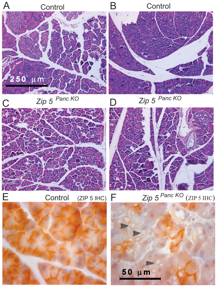 Knockdown of the pancreas acinar cell Zip5 gene sensitizes mice to zinc-induced acute pancreatitis. Two weeks after the last tamoxifen injection, control (Control) littermates and pancreas-specific Zip5 -knockout ( Zip5 Panc KO ) (n = 5) were given an I.P. injection of zinc sulfate (12.5 mg zinc/kg body weight) and 48 hr later pancreata were harvested and paraffin sections were prepared and stained with hematoxylin and eosin (panels A–D) or stained for ZIP5 using immunohistochemistry (panels E and F). Panels A and B represent control mice whereas panels C and D represent ZIP5- knockout mice ( Zip5 Panc KO ). Dark brown deposits on the basolateral surfaces of acinar cells indicate positive staining. Black arrowheads in panel F demarcate large cytoplasmic vaculoles found in acinar cells of Zip5 Panc KO mice in response to zinc. Panels A–D are photographed at 200× magnification and panels E and F are photographed at 1000× magnification.