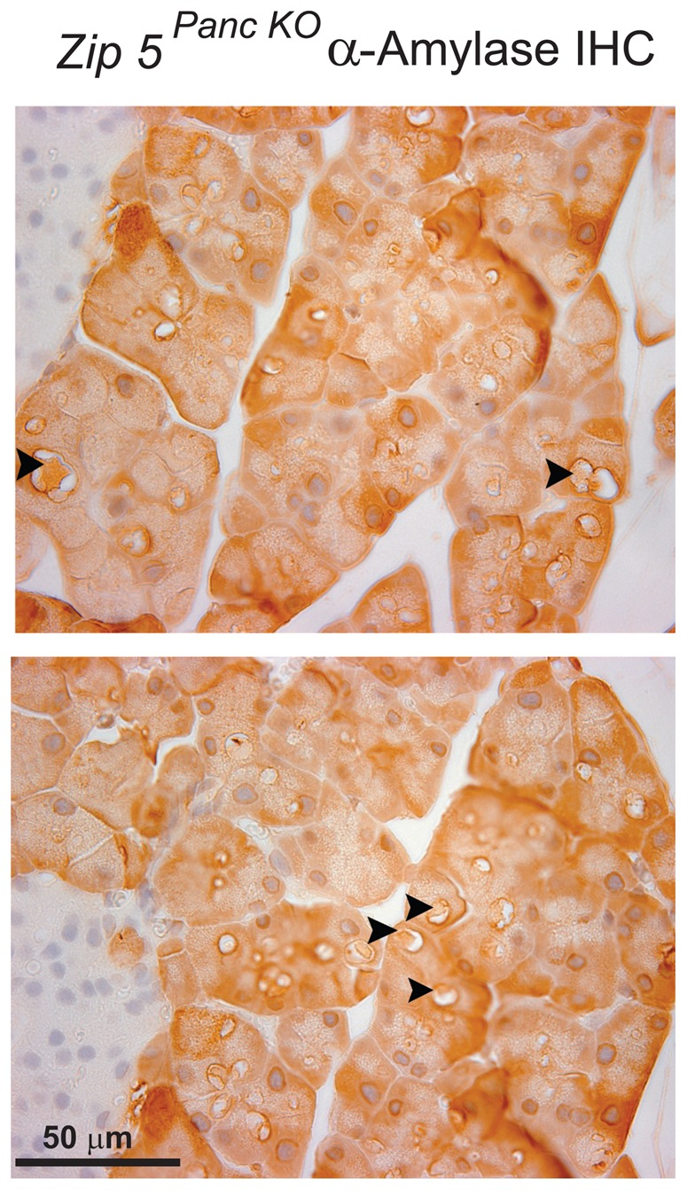 Detection of α-amylase in zinc-induced large cytoplasmic vaculoles in acinar cells of Zip5 Panc KO mice. Two weeks after the last tamoxifen injection pancreas-specific Zip5 -knockout ( Zip5 Panc KO ) mice were given an I.P. injection of zinc sulfate (12.5 mg zinc/kg body weight) and 24 hr later pancreata were harvested and paraffin sections were prepared and stained for α-amylase using immunohistochemistry. Sections from two different mice are shown. Dark brown deposits in acinar cells indicate positive staining. Black arrowheads demarcate large cytoplasmic vacuoles containing α-amylase. Sections were photographed at 630× magnification. I ; indicates an Islet of Langerhans.