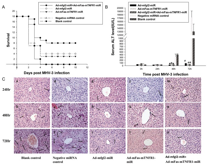 Combined interference increased the survival rate and improved liver function and histopathology in mice. ( A ): Combined interference with Ad-mfgl2-miRNA and Ad-mFas-mTNFR1-miRNA had a higher survival rate than that of interference with either construct alone in MHV-3–infected BALB/cJ mice. Ad-mfgl2-miRNA, Ad-mFas-mTNFR1-miRNA, or irrelevant miRNA control adenovirus were introduced into BALB/cJ mice by tail vein injection. The mice then received 20 PFU of MHV-3 intraperitoneally 24 hours later to promote the development of fulminant viral hepatitis. Survival data are presented. Serial serum ALT levels ( B ) and histopathology ( C ) (H E staining; original magnification, ×400) at 24, 48, and 72 h post MHV-3 infection were evaluated in the five groups of mice. ( B ) Effect of Ad-mfgl2-miRNA and/or Ad-mFas-mTNFR1-miRNA on serum ALT levels. Values represent means and standard error of three independent experiments done in triplicate. * P
