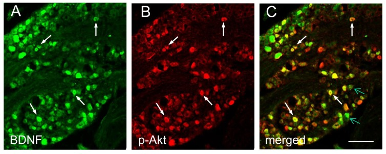 Co-localization of BDNF with p-Akt in L6 DRG during cystitis. Double immunostaining showed that a subpopulation of BDNF immunoreactive cells in L6 DRG during cystitis (A, green staining, white arrows) was co-localized with p-Akt (B: red staining). A number of BDNF positive cells (C, green arrows) did not express p-Akt. Bar = 60 µm. Five L6 DRGs from animals with cystitis were analyzed and consistent results were achieved.