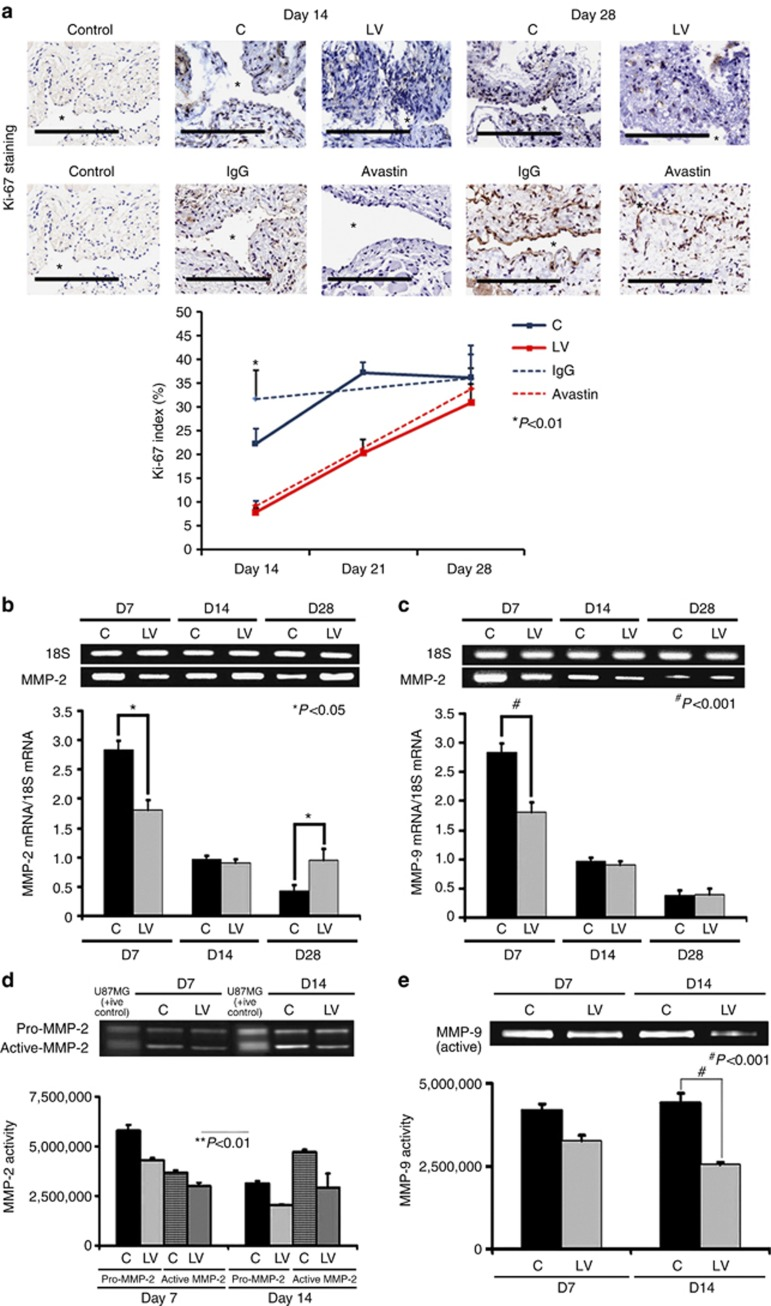 Cellular proliferation, matrix metalloproteinase 2 ( MMP-2 ), and matrix metalloproteinase 9 ( MMP-9 ) are decreased in lentivirus (LV)–small hairpin RNA (shRNA)–vascular endothelial growth factor-A ( VEGF-A )–transduced vessels. ( a , upper panel) Representative sections after Ki-67 staining at the venous stenosis of the LV-shRNA- VEGF-A (LV) and scrambled shRNA (control (C)) or Avastin-treated vessels or immunoglobulin G (IgG) controls at days 14 (D14) and 28 (D28). Nuclei staining brown are positive for Ki-67. IgG antibody staining was performed to serve as negative controls. *Indicates the lumen. All are original magnification × 40. Bar=200 μm. Pooled data for the LV and C groups or Avastin-treated vessels or IgG controls are shown in the lower panel. This demonstrates a significant decrease in the mean Ki-67 index in the LV-transduced vessels when compared with the C vessels at day 14 ( P