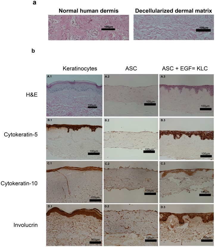 KLC have the capacity to stratify. (a) Human skin was decellularized and confirmed complete cell removal by H E staining. (b) ASC were seeded on the epithelial side of human dermal decellularized matrices in the presence or absence of EGF (0.005 µg/mL). Human dermal decellularized matrices seeded with keratinocytes were used as controls. All three groups were kept in the same media conditions and lifted to an air-liquid interphase at the same time. Histological analysis revealed the presence of several layers of KLC with an organization similar to that of keratinocytes (A.1and 3). Surprisingly, ASC without EGF not only did not transdifferentiate into KLC, but instead migrated inside the matrix (A.2). Immunohistochemical analysis revealed a positive staining of cytokeratin-5 (B.3), cytokeratin-10 (C.3) and involucrin (D.3) in stratified KLC matrices comparable to that of the stratified keratinocyte matrix (A, B, C and D.1). No positive staining was found in the ASC seeded matrices (A, B, C and D.2). Images captured using Nikon Digital Sight DS-5M on a Nikon Eclipse 50i microscope at 20x magnification. Scale bars indicate 100 µm (Image representative n = 3 independent experiments).