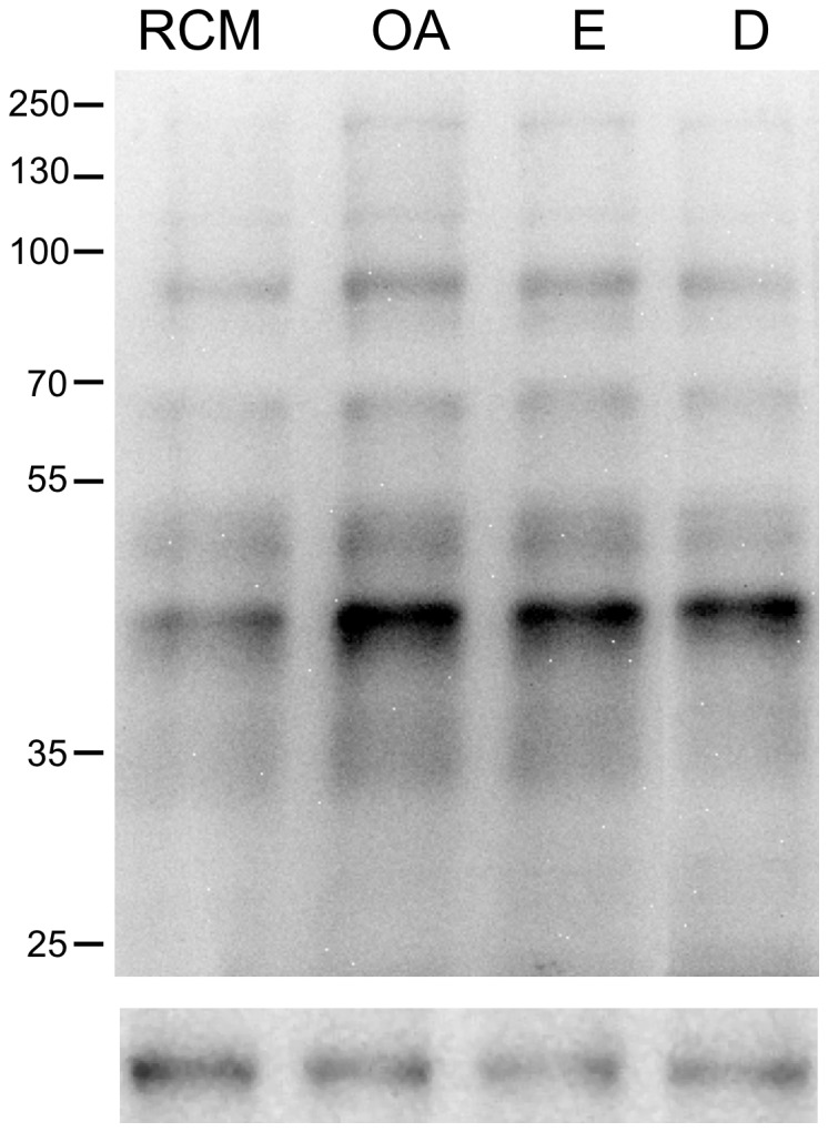 Effect of phosphatase inhibitors on phosphorylation of threonine residues of human sperm proteins. Sperm were selected in NCM and then re-suspended in RCM in the absence (RCM) or in the presence of 10 nM okadaic acid (OA), 90 nM endothall (E), or 0.1 nM deltamethrin (D), for 1 min. Then, the samples were processed for western blot analysis with a monoclonal anti-p-Thr antibody. Molecular mass of selected bands is indicated at the right. The lower panels indicate load control with anti β-tubulin antibody. The immunoblots shown are representative of three different experiments with three different donors.