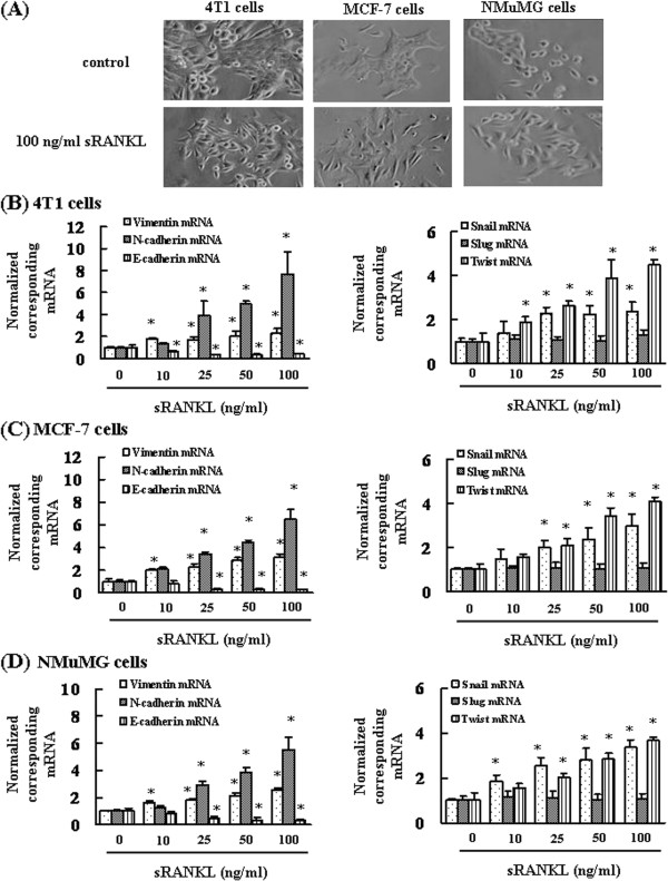 RANKL enhances Snail and Twist expression and induces changes in the morphology of cells. (A) Analysis of cell morphology after cell treatment of with 100 ng/mL RANKL. RANKL induces changes in the epithelial morphology of 4T1, MCF-7, and NMuMG cells (×40 magnification). (B-D) Total RNA was extracted, and the mRNA expression levels of vimentin, E-cadherin, N-cadherin, Snail, Slug, and Twist were determined by real-time PCR. The results are expressed as treated over control ratio after correction to GAPDH mRNA levels. The results are representative of 5 independent experiments. *p