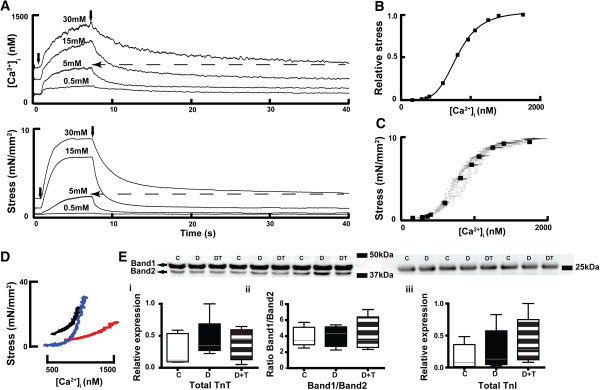 The steady-state force-[Ca 2+ ] i  relationship and expression of TnT  TnI in LV myocardium. (A)  Representative traces of [Ca 2+ ] i  and stress during tetanic stimulation of a trabecula from a diabetic rat (at [Ca 2+ ] o : 0.5, 5, 15 and 30mmol/L); the solid arrows indicate where stimulation started and ended; the dashed arrows indicate that the resting [Ca 2+ ] i  and the corresponding resting stress at 30mmol/L [Ca 2+ ] o  were comparable to the tetanized [Ca 2+ ] i  and its corresponding stress at 5mmol/L [Ca 2+ ] o .  (B)  The corresponding data obtained 4s after commencing tetanic stimulation from this trabecula were fitted to the Hill equation as shown.  (C)  The rising aspects of the phase plots of [Ca 2+ ] i  and tetanus at different [Ca 2+ ] o  values from the same trabecula are shown (irregular grey lines), where the data used for fitting to the Hill equation (as in B) have been superimposed (black squares).  (D)  Averaged relaxation phase plots of [Ca 2+ ] i  and tetanus at [Ca 2+ ] o  20mmol/L from numbers of trabeculae in each experimental groups (Control: black line,  n= 9; Diabetic: red line,  n= 7; TETA-treated diabetic: blue line,  n= 7). Diabetic rats showed a rightward shift of the relaxation phase, consistent with decreased myofibrillar Ca 2+  sensitivity whereas TETA-treatment preserved the Ca 2+  sensitivity in diabetic hearts.  (E)  Expression of TnT (upper left panel shows representative western blots of three animals from each group; box and whisker plots (median, range) below show normalized densitometry of both TnT bands (i)    ratios of the two TnT bands (ii) at molecular weights in the range of 40–42.5kDa, n=5 in each group); and TnI (right panel; iii, molecular weight 28kDa, n=6 in each group) in LV tissue from the three experimental groups; these showed no significant between-group differences. C: Control (Open bars); D: Diabetic (Solid bars); D+T: TETA-treated diabetic (Patterned bars). Significance was tested by one-way Kruskal-Wal