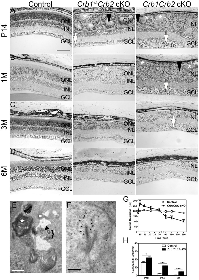 Abnormal layering in Crb1Crb2 cKO retinas. Histological sections of P14 (A), 1M (B), 3M (C) and 6M (D) old control (left; Crb1 +/− Crb2 F/+ cKO), Crb1 +/− Crb2 cKO (middle) and Crb1Crb2 cKO (right). Crb1Crb2 cKO retinas had a thick ganglion cell layer and a second broad nuclear layer separated by the inner plexiform layer. Crb1 +/− Crb2 cKO had perturbed outer and inner nuclear layers. Ectopic localization of dark-pigmented photoreceptors (white arrows), ganglion/inner nuclear layer cells (white asterisks) and rosettes of photoreceptors (black arrowheads) was visible in the two mutant retinas ( Figure S5B ,D). Both mutant retinas degenerated rapidly with age. GCL, ganglion cell layer; INL, inner nuclear layer; ONL, outer nuclear layer; (E,F) Electron microscopic pictures of 1M old Crb1Crb2 cKO retinas. Some complete segments (E, white asterix), adherens junctions (E, black arrow) and centrioles of cilium (E, bracket) or ribbon synapses with vesicles on the two sides of the cleft (F, black asterix) were identified but in ectopic locations. (G) The thickness of 4–5 control and Crb1Crb2 cKO retinas from P8 to P360. Crb1Crb2 cKO retinas had a thicker retina than littermate controls at P10 and P14, followed by progressive thinning and degeneration. (H) The cleaved caspase 3 positive apoptotic cells were counted at P10, P14 and 3M from 20–30 sections of 3 littermate controls and Crb1Crb2 cKO whole retinas. Mutant retinas showed an increase in the number of apoptotic cells. Data are presented as mean ± s.e.m. *P