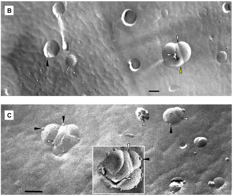 Freeze-fracture electron microscopy of the 1 /POPC/PEG-ceramide fliposome formulation at pH 7.4 ( A ) and 5 minutes after adjusting the pH to 5.5 with diluted acetic acid ( B , C ). Examples of division, buds, and stripes are shown with white, black, and yellow arrows respectively. The bars represent 100 nm.