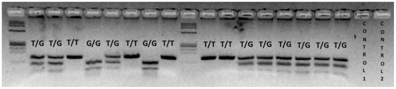PCR-RFLP to determine MDM 2 SNP309 polymorphism. MDM 2 SNP309 T allele is not cleaved by MspA1I endonuclease and generates a single fragment of 155 bp. The MDM 2 SNP309 G allele is cleaved by MspA1I and generates two small fragments of 101 and 54 bp. The MDM 2 SNP309 heterozygote displays three fragments of 155, 101 and 54 bp.