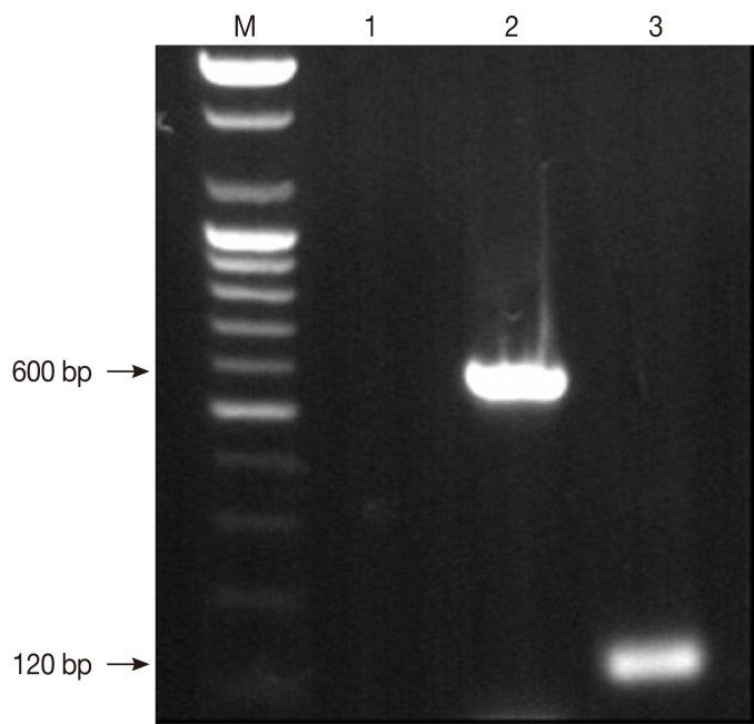 Detection of Leishmania spp. in the canine skin specimen by <t>PCR</t> with primer pairs specific to Leishmania spp. Lane M; 100 bp <t>DNA</t> molecular marker. Lane 1; negative control without template DNA used for PCR assay with primer pair specific to the partial SSU rRNA gene. Lane 2; the partial SSU rRNA gene. Lane 3; kinetoplast DNA minicircle of Leishmania infantum isolated from a dog from Korea in this study.